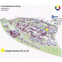 Prof. - Herbert Rübben - Universitätsklinikum Essen - Klinikstandort