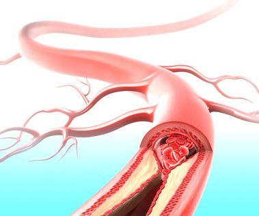 Thrombose - Blutgerinnsel in einer Vene
