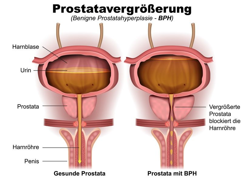 tur prostata op-ablauf