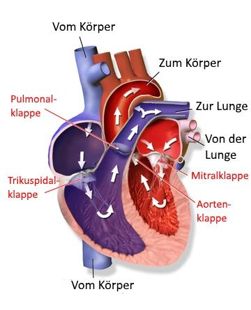 Herzklappenfehler Arten Ursachen Symptome Therapie