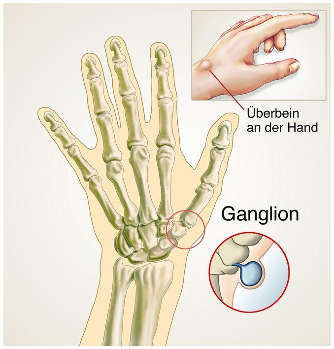 Finger knubbel nub
