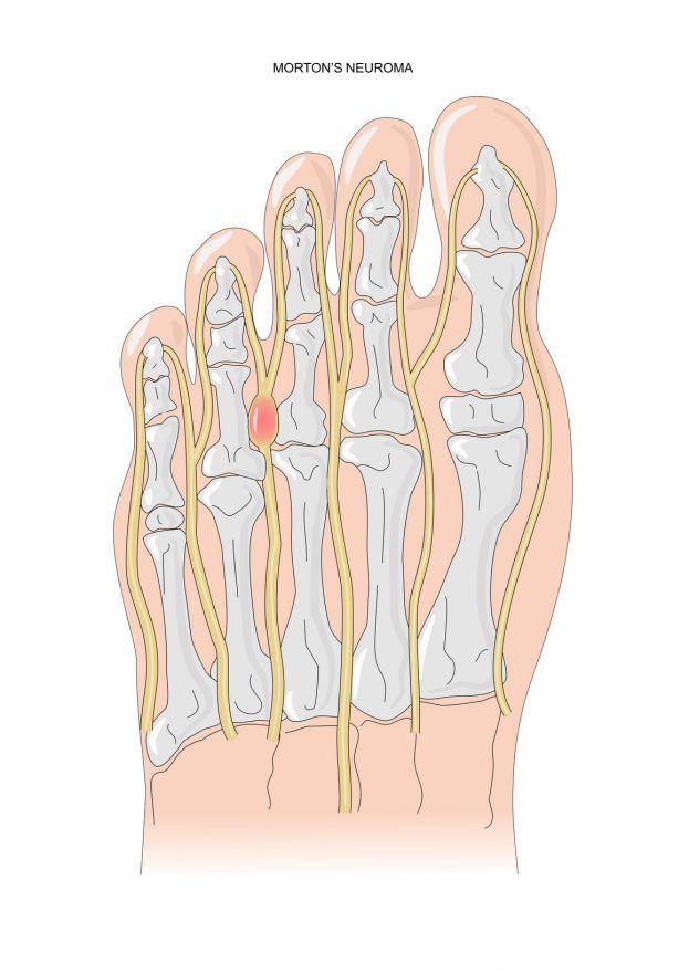 Morton-Krankheit | Nervenschmerz im Fuß