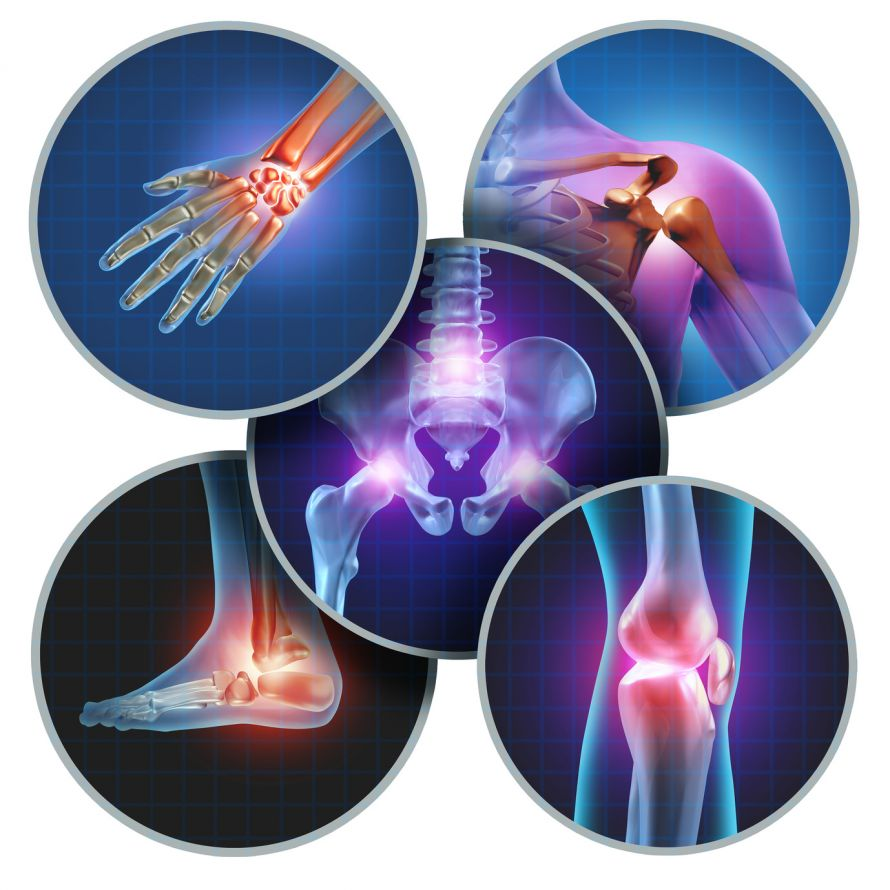 Rheumatoide Arthritis | Chronische Gelenkentzündung
