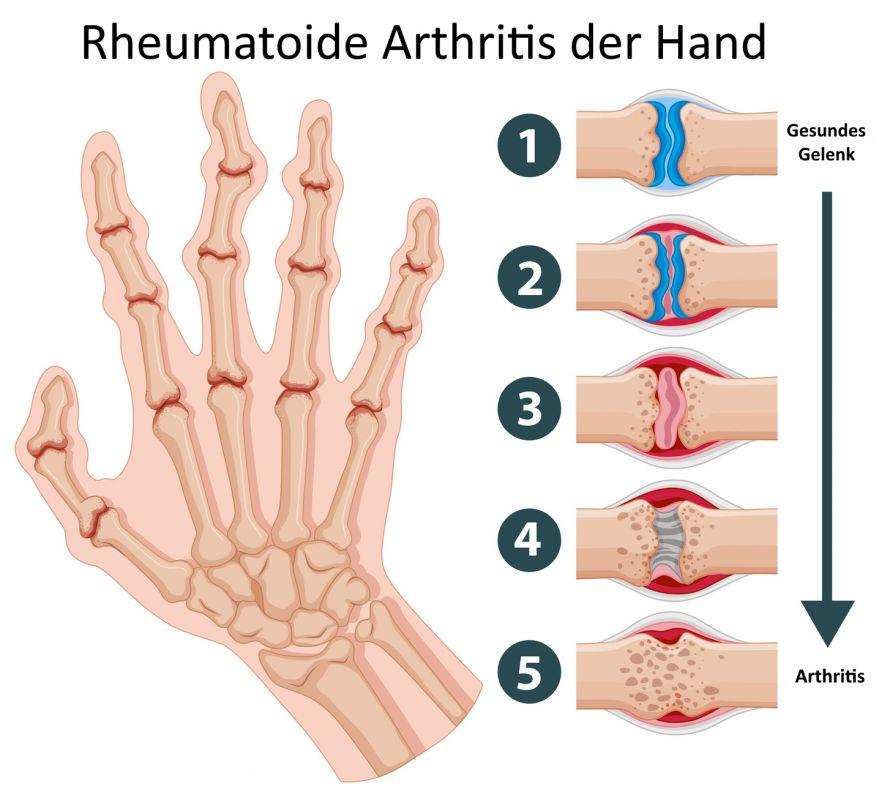 Wie wird rheumatoide Arthritis behandelt
