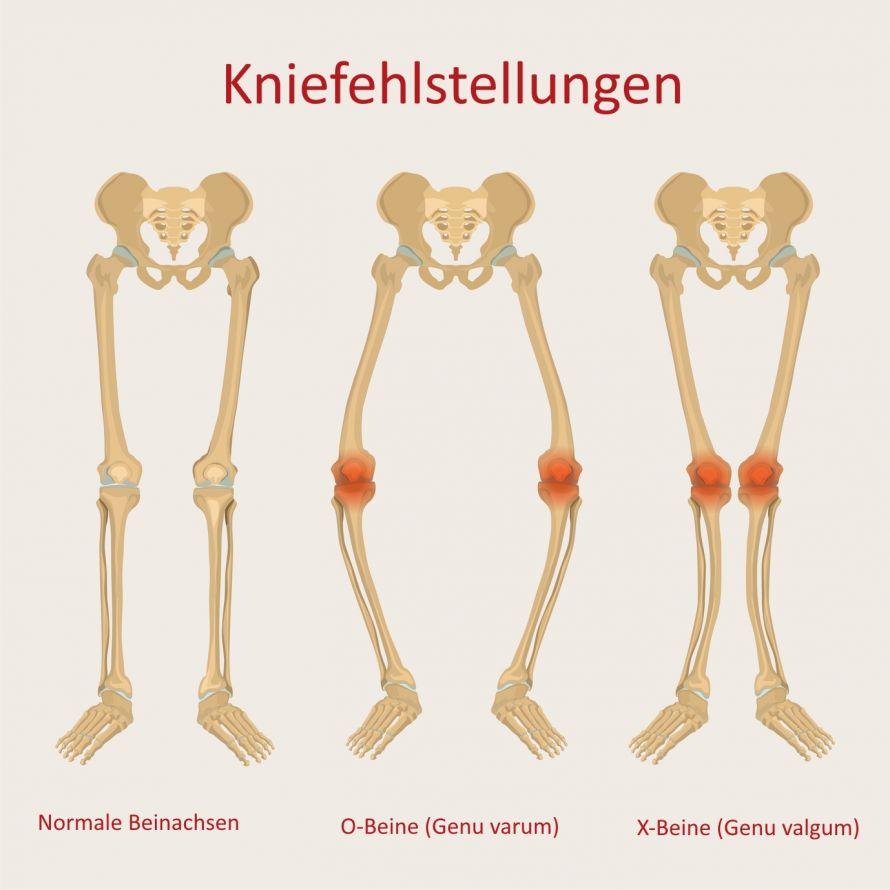 Kniefehlstellungen X-Beine O-Beine