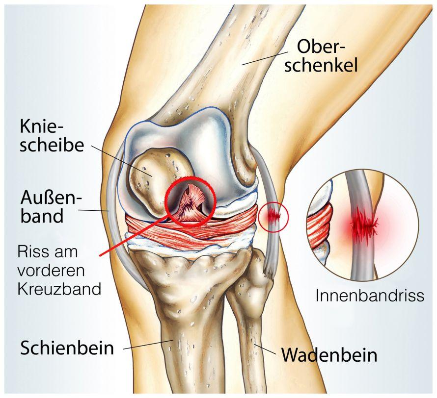 Bänder Im Knie