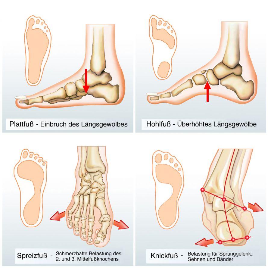 Plattfuß (Knick-Senk-Fuß) - Informationen und Experten