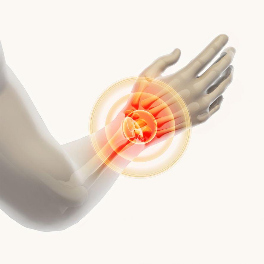 Brechen schmerzen handgelenk ohne Knochen brechen,