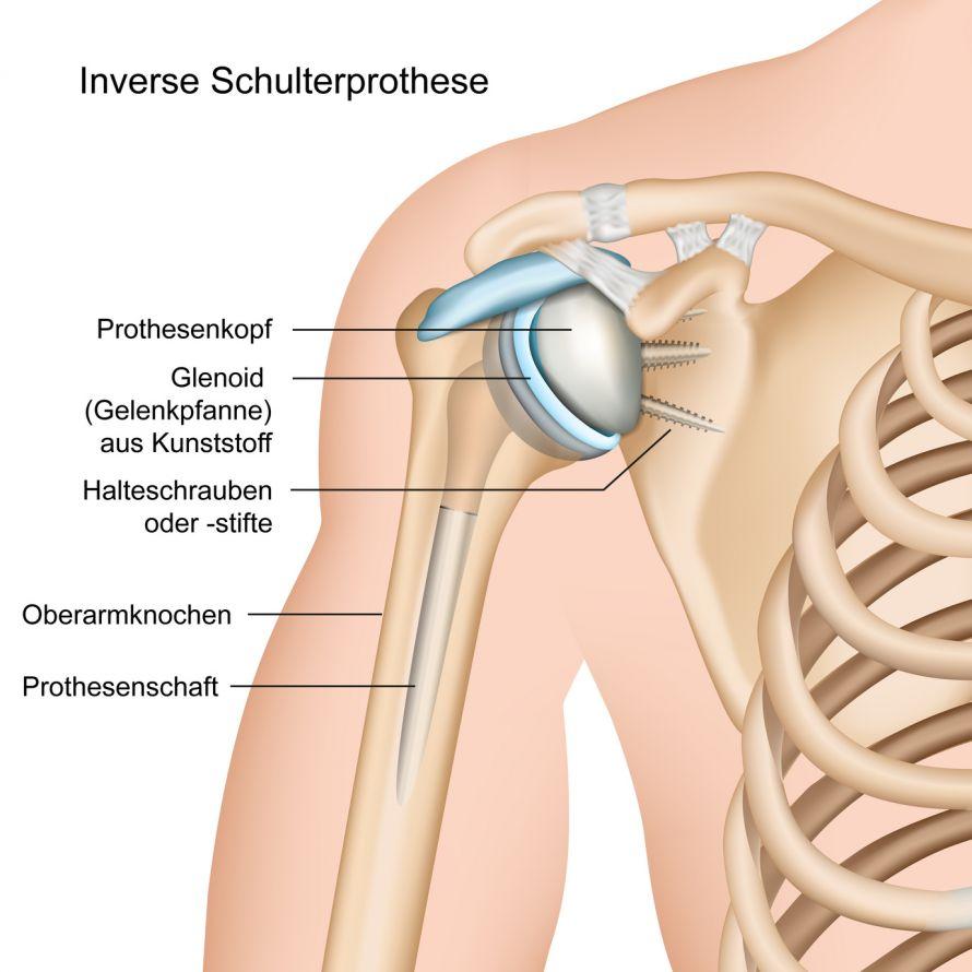 Schulterprothese | Künstlicher Gelenkersatz