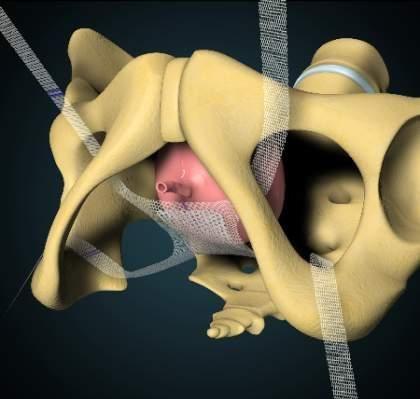 Lange krank gebärmutterentfernung vorderer plastik mit wie Dauer eines