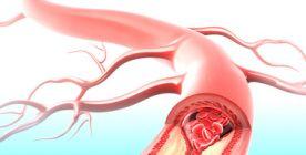Thrombose: Ursachen, Symptome, Therapie