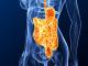 Morbus Crohn Operation - Operative Möglichkeiten bei Morbus Crohn